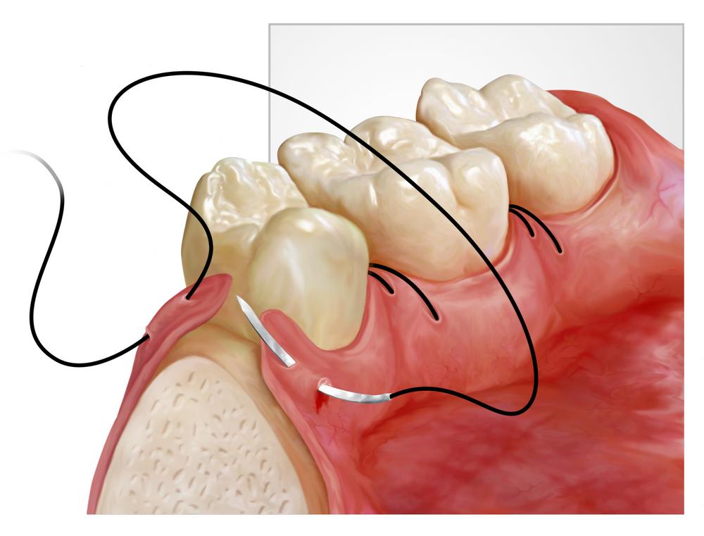 Konya Plastik Periodontal Tedavi
