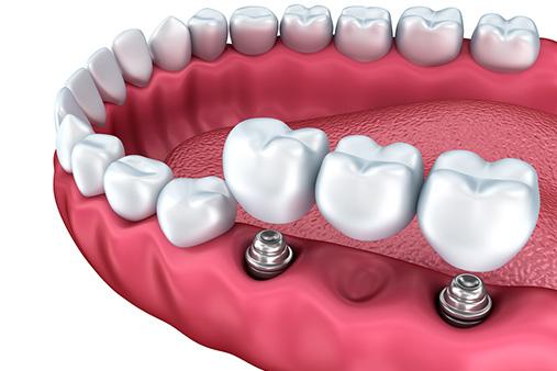 diş protez konya