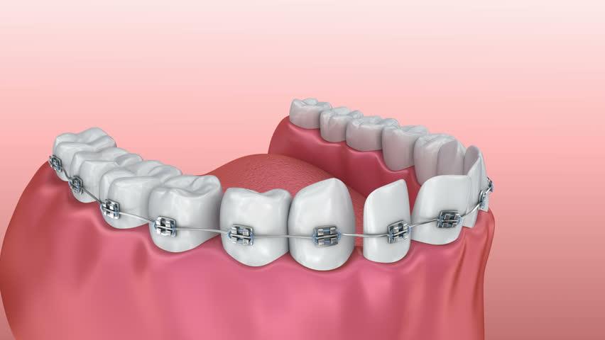 diş teli fiyatları konya
