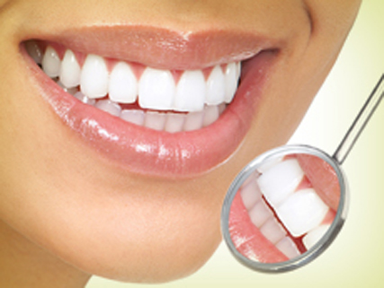 lamine diş kaplama konya
