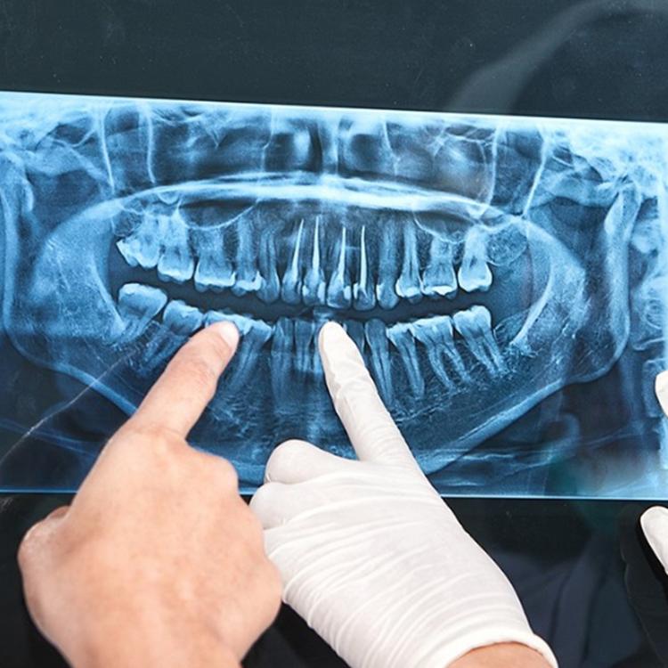 konya diş hekimi
